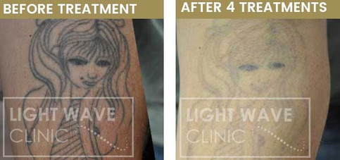 rickmansworth-watford-tattoo-removal-24.