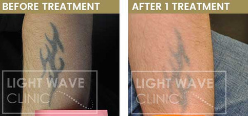 rickmansworth-watford-tattoo-removal-11.
