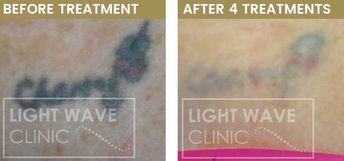 rickmansworth-watford-tattoo-removal-37.