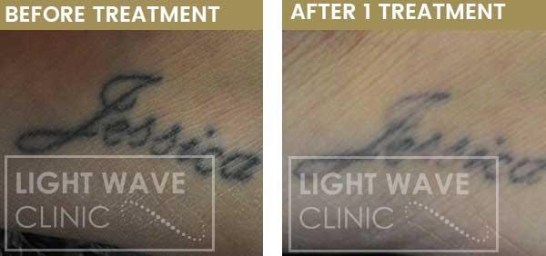 rickmansworth-watford-tattoo-removal-33.