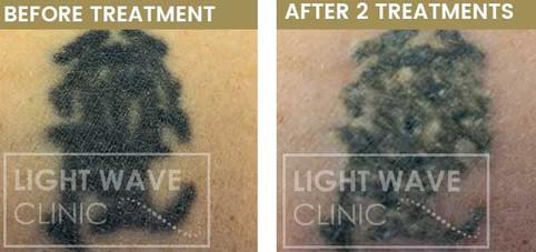 rickmansworth-watford-tattoo-removal-30.