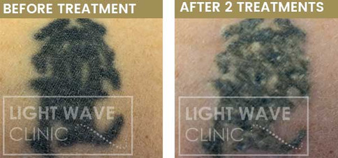 rickmansworth-watford-tattoo-removal-30.