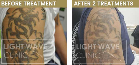 rickmansworth-watford-tattoo-removal-48.