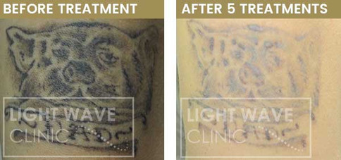 rickmansworth-watford-tattoo-removal-47.