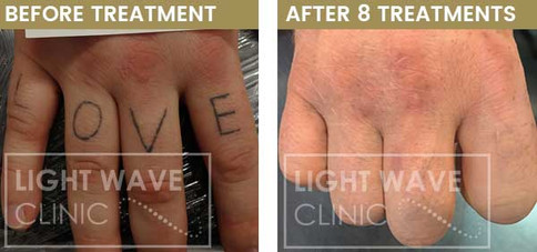rickmansworth-watford-tattoo-removal-04.