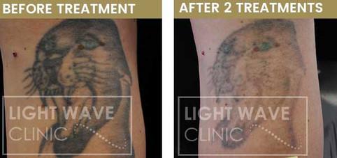 rickmansworth-watford-tattoo-removal-53.