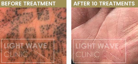 rickmansworth-watford-tattoo-removal-01.