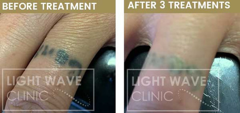 rickmansworth-watford-tattoo-removal-21.