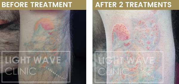 rickmansworth-watford-tattoo-removal-06.