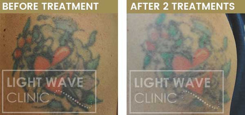 rickmansworth-watford-tattoo-removal-44.