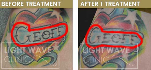 rickmansworth-watford-tattoo-removal-14.