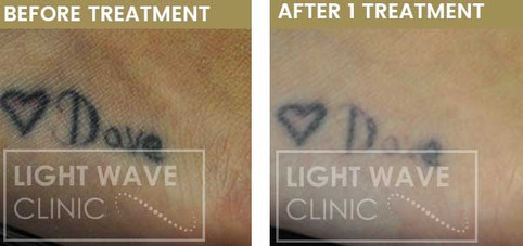 rickmansworth-watford-tattoo-removal-34.