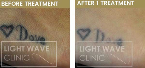 rickmansworth-watford-tattoo-removal-34.