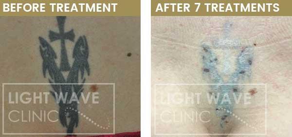 rickmansworth-watford-tattoo-removal-35.