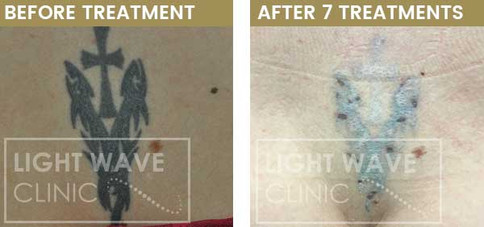 rickmansworth-watford-tattoo-removal-35.