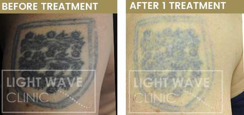 rickmansworth-watford-tattoo-removal-54.