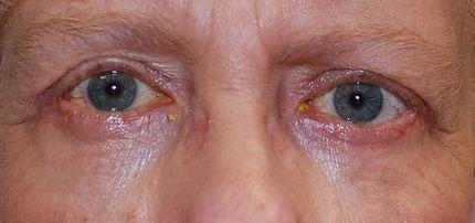 upper and Lower blepharoplasty2 CEL.jpg