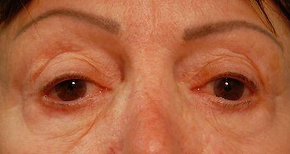 upper and lower blepharoplasty ADEL.jpg