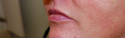 Filler Lips After2.jpg