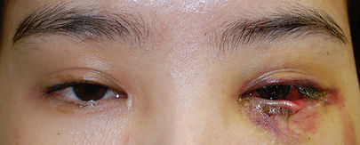 Eyelid Tumor Reconstruction.jpg