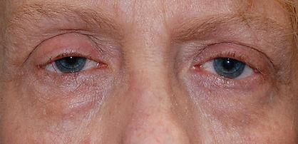 upper and Lower blepharoplasty1 CEL.jpg
