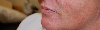 Filler Lips Before.jpg