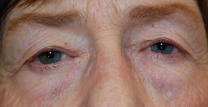 lower blepharoplasty.jpg