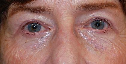 lower blepharoplasty2.jpg