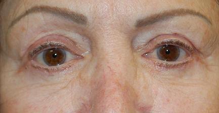 upper and lower blepharoplasty (2) ADEL.