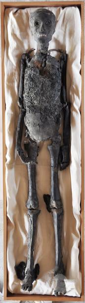 The Mummy of King Tutankhamun
