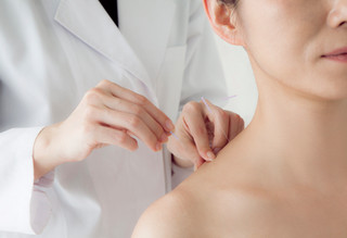 Acupuncture - Questions Answered