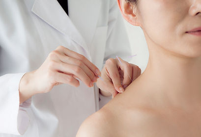 doctor applying acupuncture needles to a woman