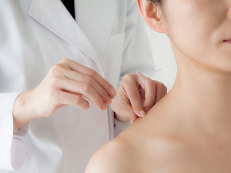 The Healing Power of Acupuncture