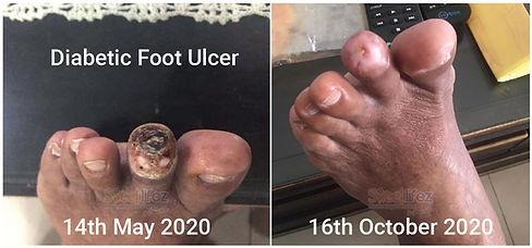 foot ulcer -02-01.jpg