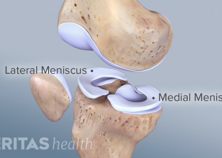 So you tore your meniscus