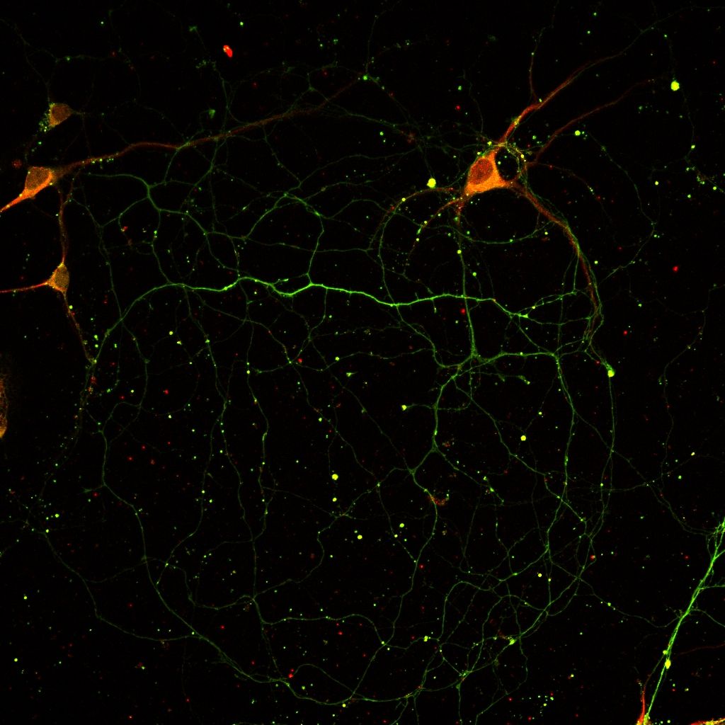The highlighted body of a neuron.