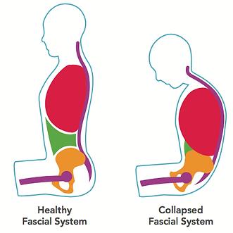 Cerebral Palsy, Fascial System