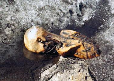 Skin Seamstresses and Healing Tattoos of the Ancient World | Ötzi the Iceman while still frozen in the glacier, photographed by Helmut Simon upon the discovery of the body in September 1991