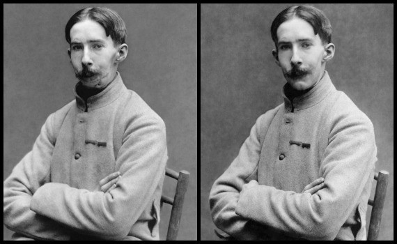 A French mutilé before (left) and after being fitted with a mask by Anna Ladd (Library of Congress/Restoration by Lise Broer)