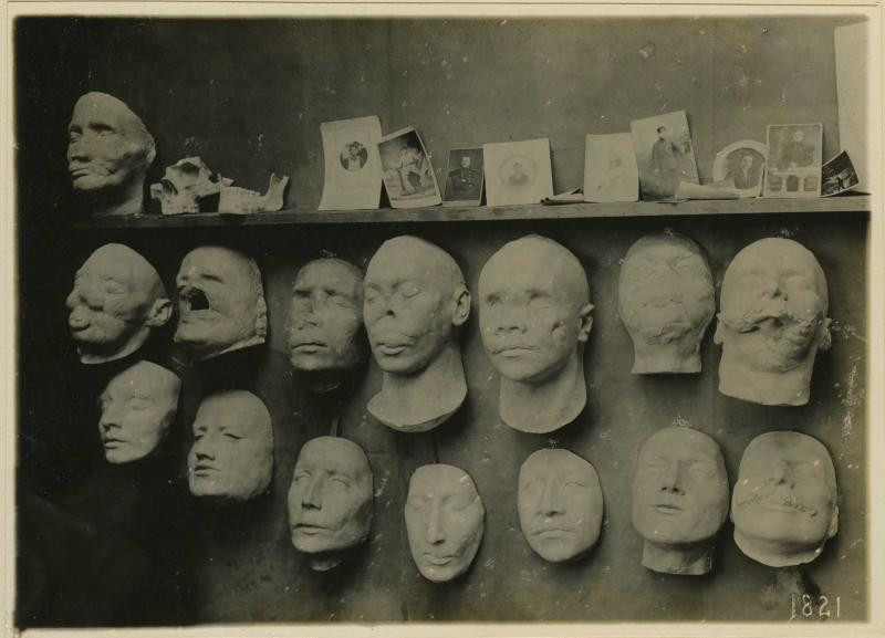 Anna Coleman Ladd plaster face casts via National Museum of Health & Medicine (1917)