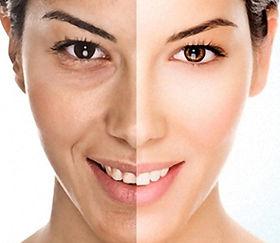 tratamento para manchas no rosto em petr