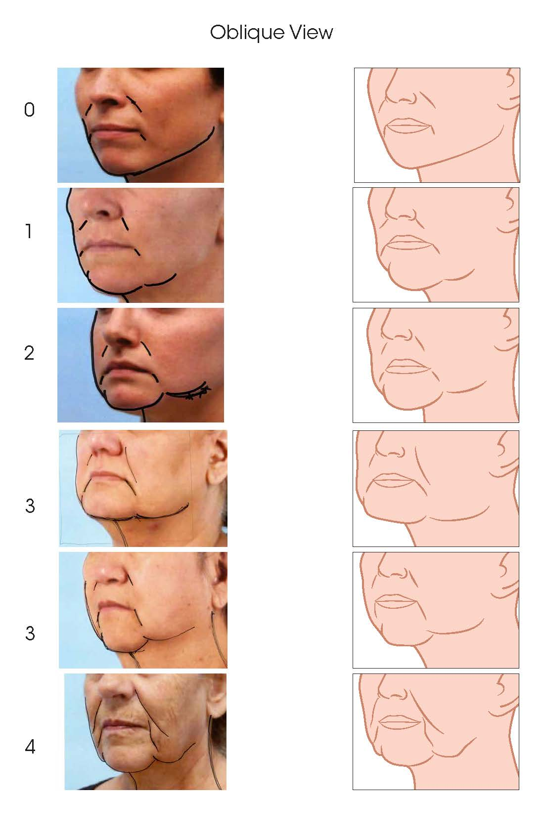 Jowls Rating Scale Updates_Page_3