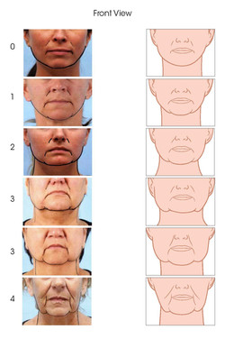 Jowls Rating Scale Updates_Page_1