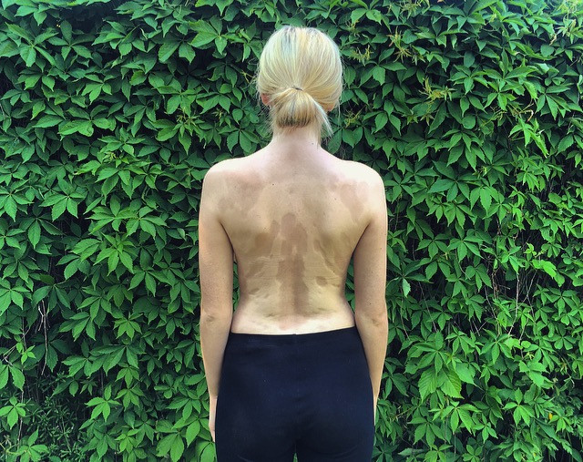 Charlotte Clayton from horrendously feminist posing showing her scarred skin on her back inspired by MissGuided and their #inyourownskin campaign, body positivity