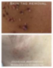 skin tag axilla.JPG