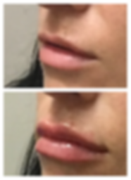 LIPS BL1.PNG