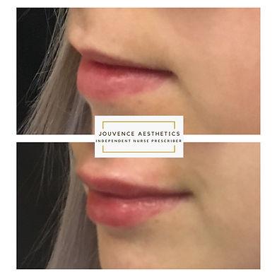 lips 6 sept 20.JPG