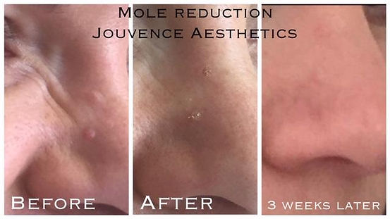mole reduction ec.jpg
