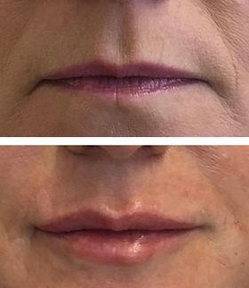 lips kz1.jpg