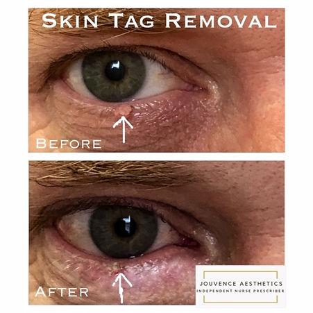 skin tag eye 20.JPG